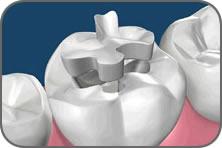 intarsi in ceramica denti