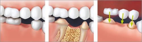 Soluzione con il ponte dei denti