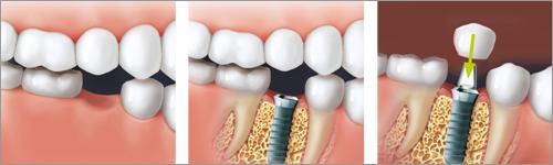Soluzione con impianto denti