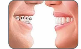 Ortodonzia - Apparecchio denti