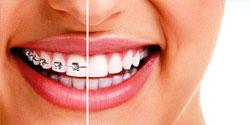 Ortodonzia, montaggio dell'apparecchio ai denti