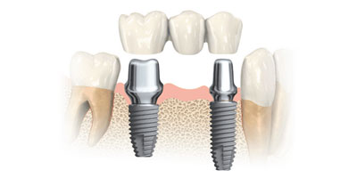impianti dentali guida